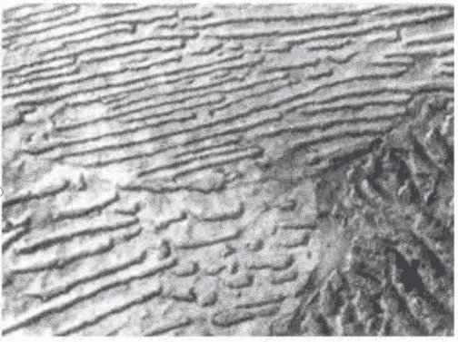 8 Common  Microstructures of Metal and Alloy 15